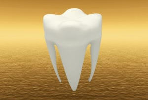 zahngold - Zahngold Ankauf Dentalgold Juwelier Sscha Wien 300x204 - Zahnarztgold – Wir kaufen Ihr Dentalgold